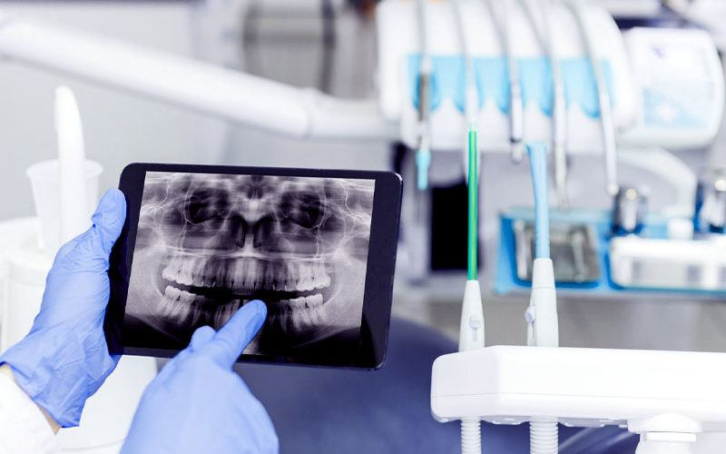 dentist hand pointing to teeth x-ray on ipad